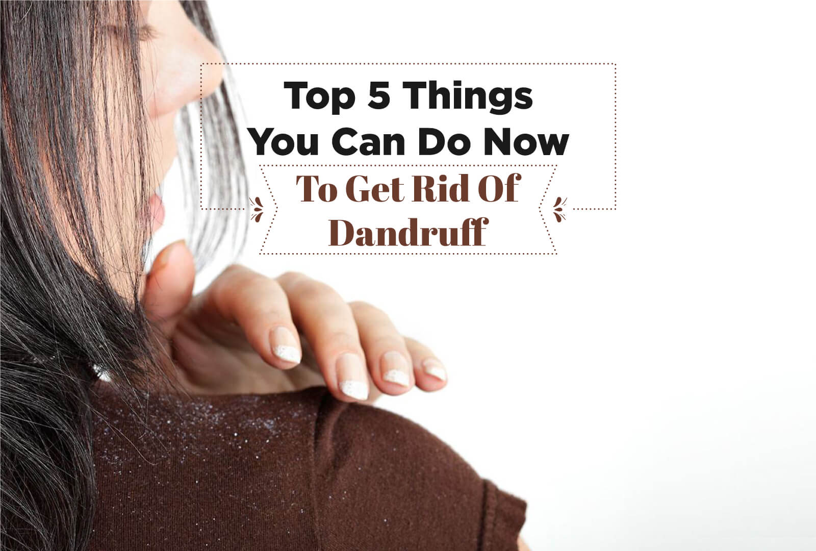 THE TOP 5 THINGS YOU CAN DO NOW TO GET RID OF DANDRUFF